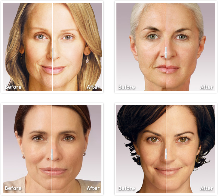 Injectable Fillers Twin Cities   Juvederm St  Paul   Voluma Woodbury